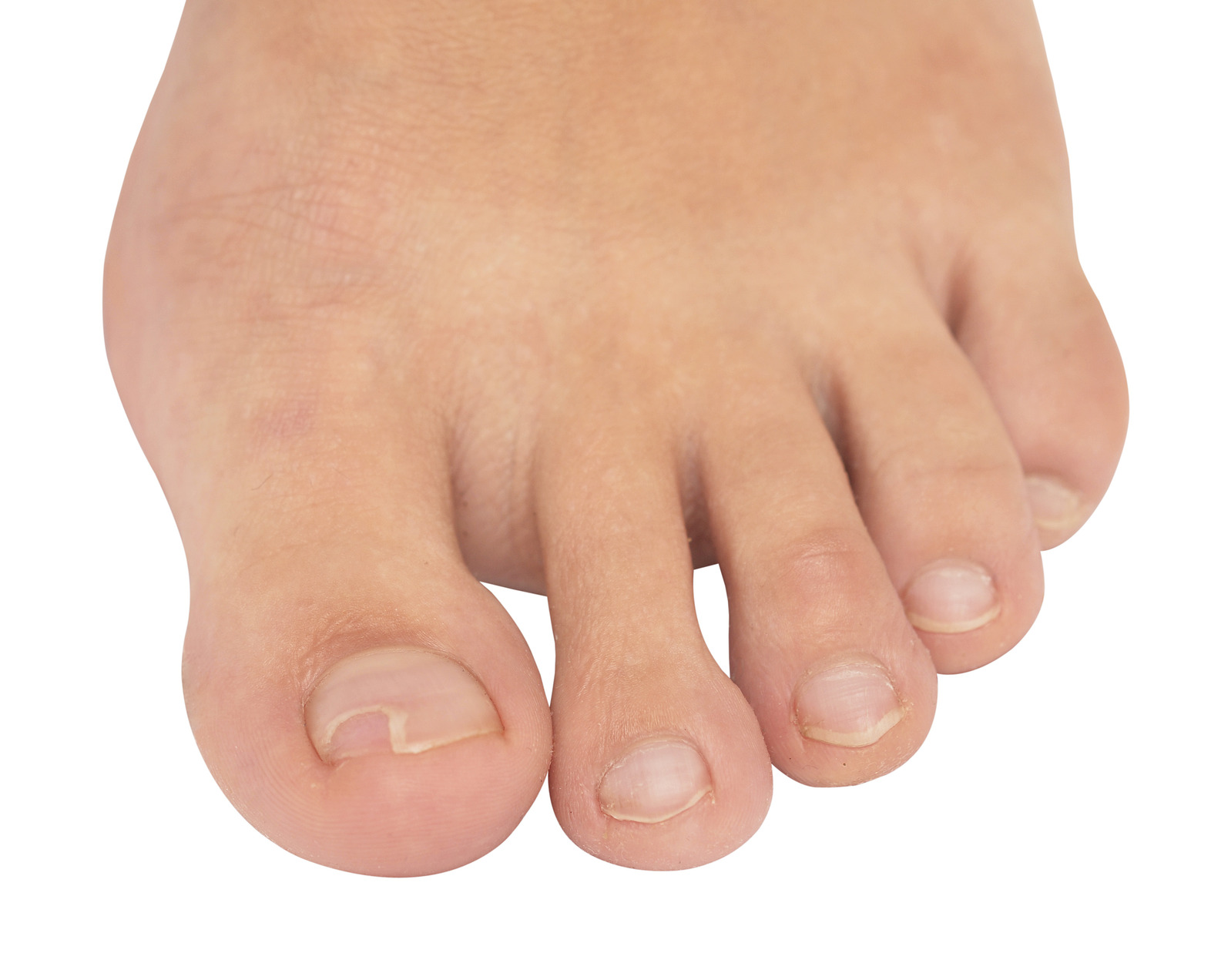 toenail fungus - Mississauga Foot Care Website